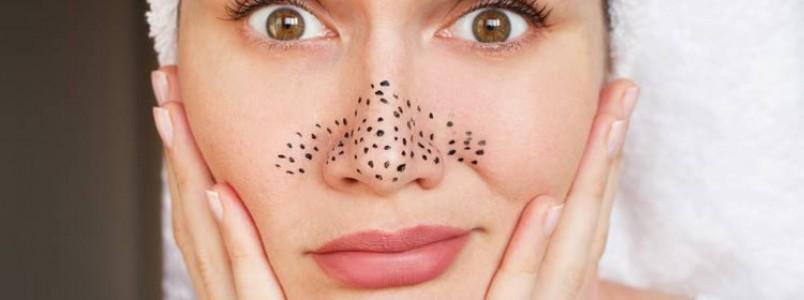 Cravos pretos: aprenda como remover sem machucar a pele