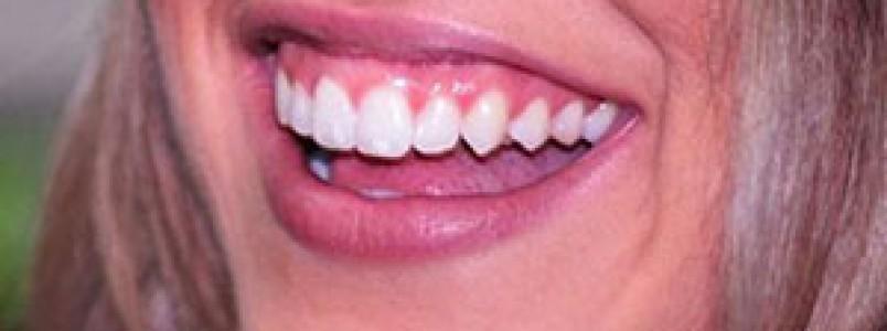 Alimentação inadequada e o estresse do dia dia podem prejudicar a saúde bucal