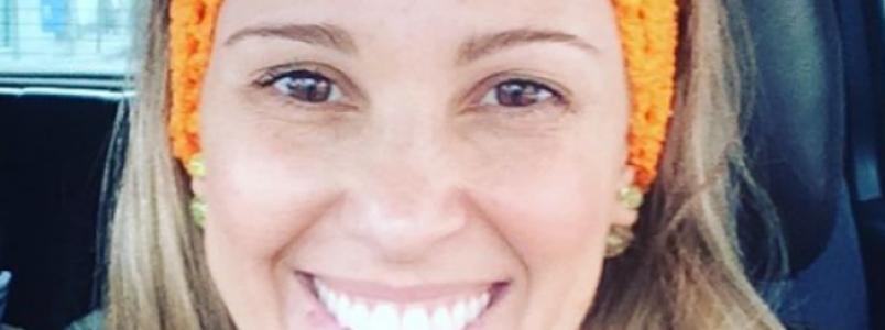 Ex-paquita relata quase ter perdido visão após acidente com ácido