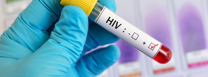 Infectologista explica as formas de transmissão do HIV e como preveni-las