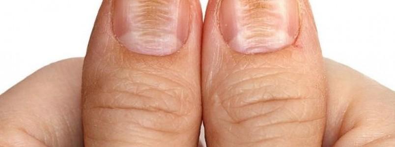 Beribéri – O que é, causas, sintomas e tratamento