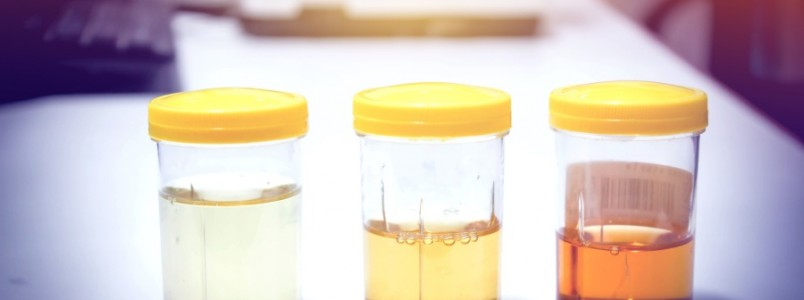 Cor da urina pode apontar doenças. Analise a sua