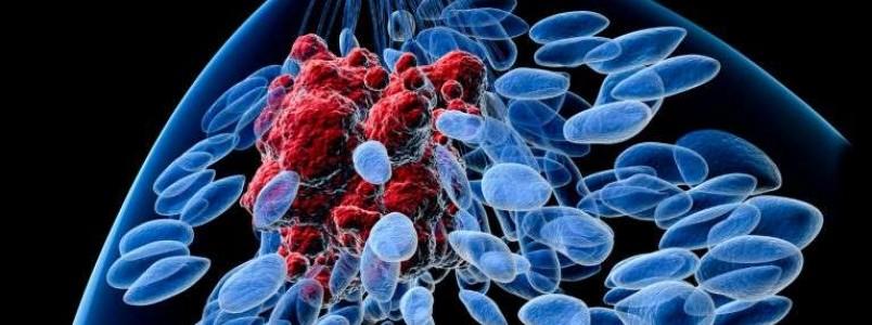 Novo exame poderá ajudar muito no tratamento do câncer de mama futuramente