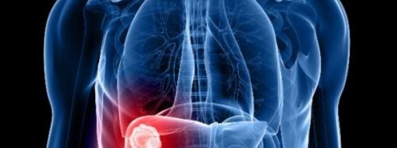 Brasil ganha destaque na detecção da hepatite; meta é erradicar a doença até 2030