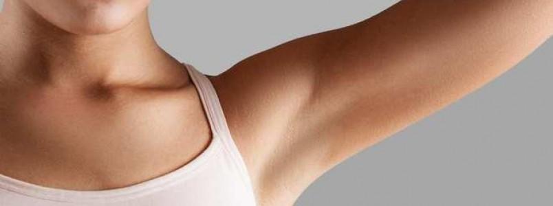 Clareamento de axilas – O que é, tratamentos e como evitar manchas