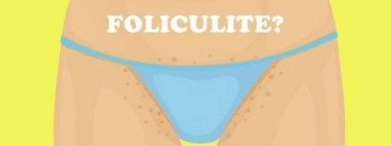 Foliculite na virilha, o que é? Causas, tratamento e prevenção