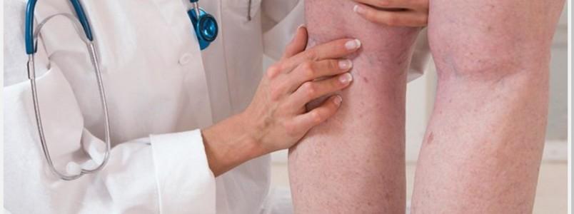 Dia Mundial de Combate à Trombose: saiba o que é mito ou verdade sobre a doença