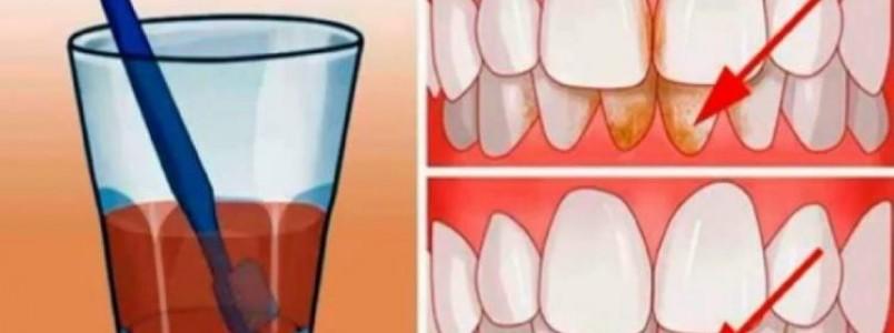 7 maneiras caseiras e naturais de eliminar a placa bacteriana