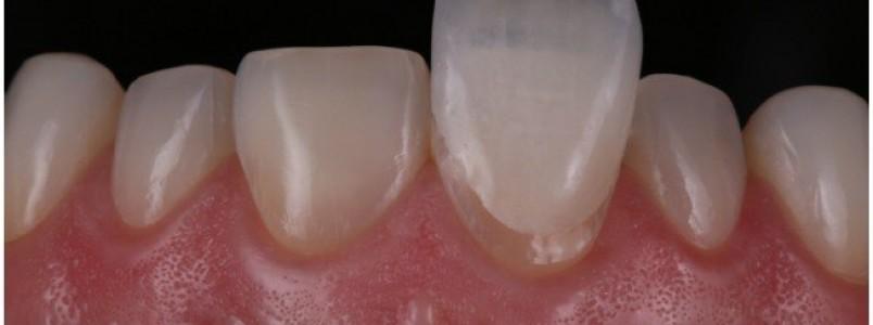 Lentes de contato dental  - saiba como deixar seu sorriso mais bonito
