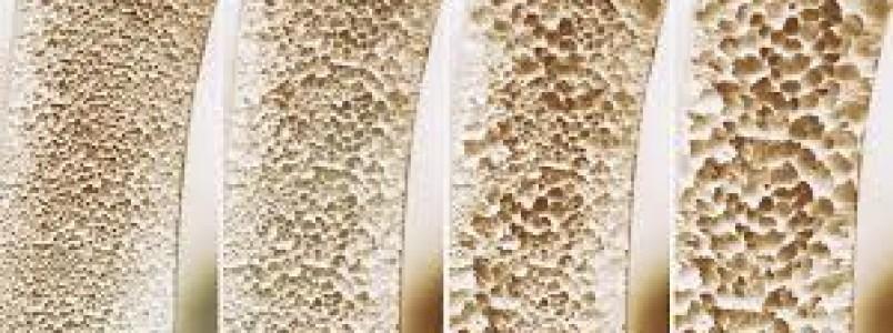 Cuidados para evitar osteoporose devem começar na infância