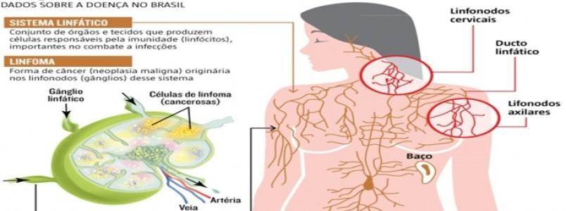 Linfoma: descoberta precoce do câncer que afeta defesa do organismo pode salvar vidas