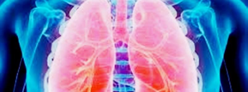 Fibrose cística: 10 conselhos médicos para controlar a doença
