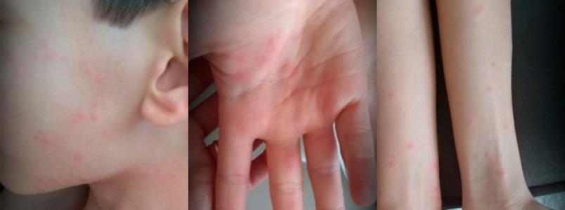 Doença misteriosa: hipótese vai de picada a química, diz mãe de vítima