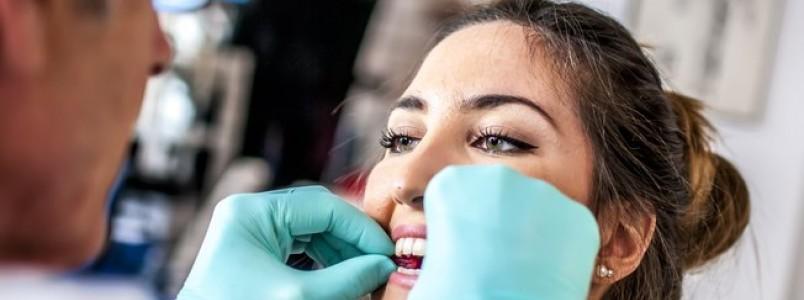 Paciente com câncer deve ter acompanhamento do dentista