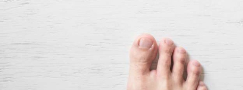 Sapatos apertados podem provocar unhas encravadas! Veja como evitar o problema