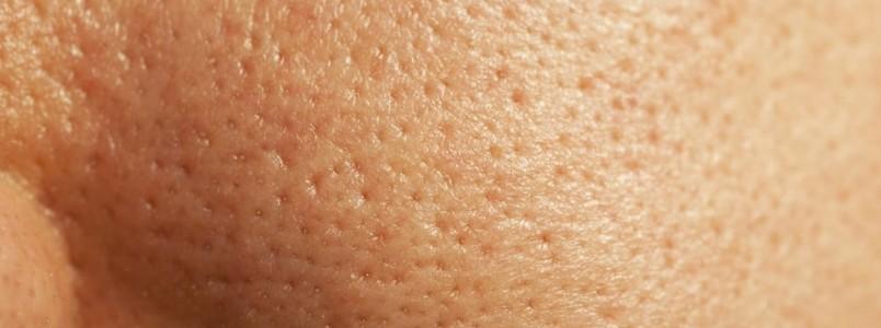 7 receitinhas caseiras certeiras contra poros dilatados