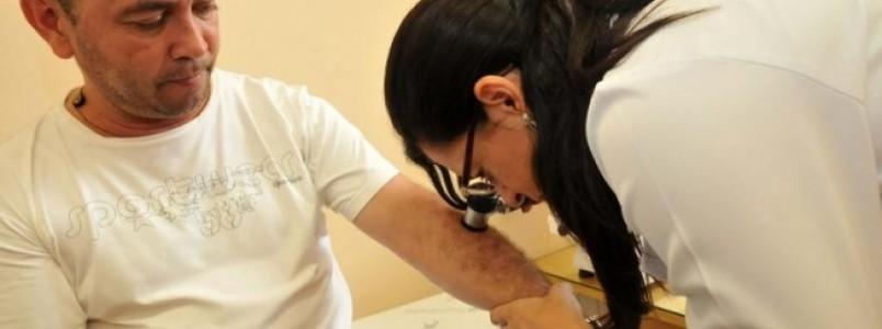 BH terá exames gratuitos para detecção de câncer de pele e DSTs neste sábado